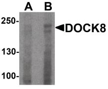 DOCK8 Antibody (PA5-38049)