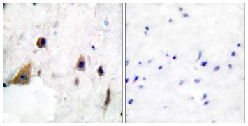 Phospho-DARPP-32 (Thr75) Antibody (PA5-38065)