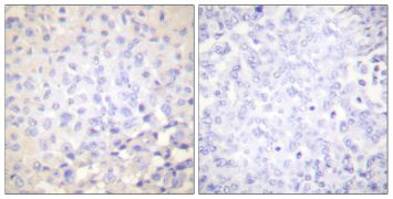 Phospho-IkB epsilon (Ser22) Antibody (PA5-38070)