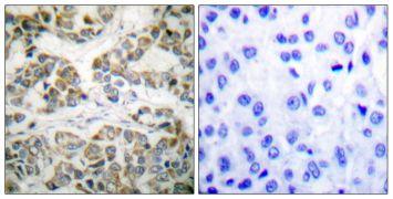 Phospho-SHC (Tyr349) Antibody (PA5-38073)