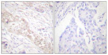 Phospho-SMAD2 (Ser467) Antibody (PA5-38074)