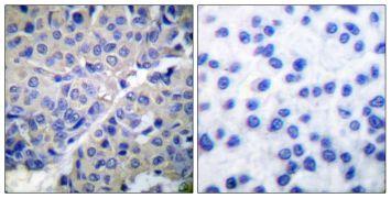 Phospho-Synaptotagmin 1 (Ser309) Antibody (PA5-38075)