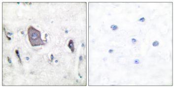 Phospho-TrkB (Tyr705) Antibody (PA5-38077)