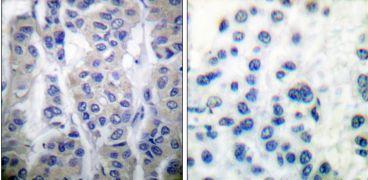 Phospho-LIMK1/LIMK2 (Thr508, Thr505) Antibody (PA5-38078)