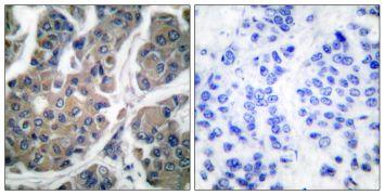 Phospho-EEF2 (Thr56) Antibody (PA5-38085)