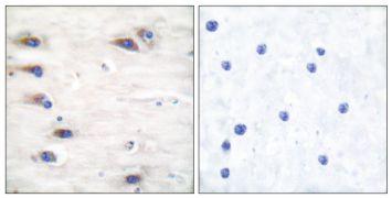 Phospho-KSR1 (Ser392) Antibody (PA5-38088)
