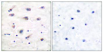 Phospho-PLCB3 (Ser1105) Antibody (PA5-38089)