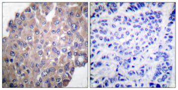 Phospho-PLCG1 (Tyr771) Antibody (PA5-38090)