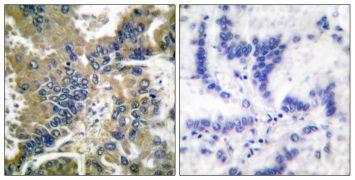 Caspase 1 (Cleaved Asp210) Antibody (PA5-38099)