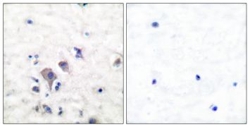 GluR2/GluR3 Antibody (PA5-38105)