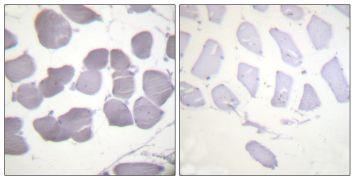 Phospho-AMPK beta-1 (Ser181) Antibody (PA5-38109)