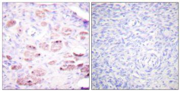 Phospho-DAXX (Ser668) Antibody (PA5-38111)