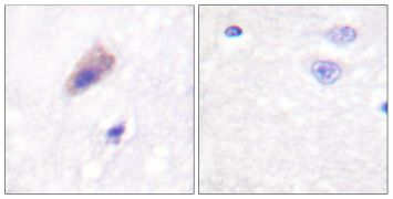 Phospho-Dynamin 1 (Ser774) Antibody (PA5-38112)
