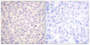 Phospho-FADD (Ser194) Antibody (PA5-38113)