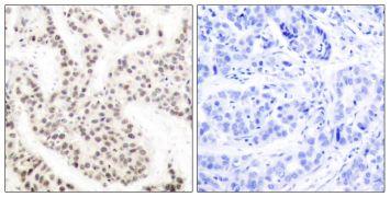 Phospho-ELK1 (Thr417) Antibody (PA5-38131)