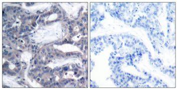 Phospho-MEK2 (Thr394) Antibody (PA5-38140)