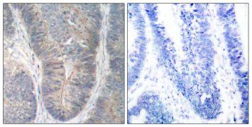 Phospho-PKR (Thr451) Antibody (PA5-38145)