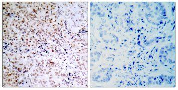 Phospho-Rb (Ser795) Antibody (PA5-38146)