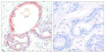 Phospho-c-Rel (Ser503) Antibody (PA5-38147)
