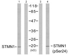 Phospho-STMN1 (Ser24) Antibody (PA5-38150)