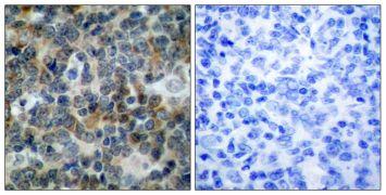 Phospho-VASP (Ser238) Antibody (PA5-38152)