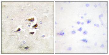 CaMKII alpha/beta/delta Antibody (PA5-38239)
