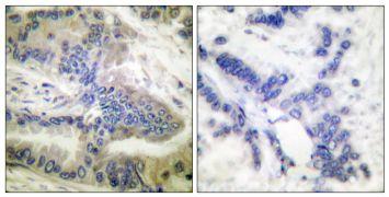 Phospho-Caspase 6 (Ser257) Antibody (PA5-38241)