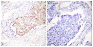 HYD Antibody (PA5-38247)
