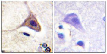 Phospho-OPRD1 (Ser363) Antibody (PA5-38252)