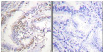 Phospho-Ku70 (Ser5) Antibody (PA5-38257)