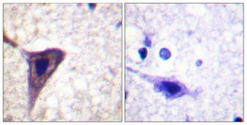 Phospho-BID (Ser78) Antibody (PA5-38262)