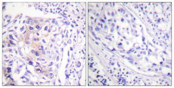 Phospho-c-Cbl (Tyr774) Antibody (PA5-38265)