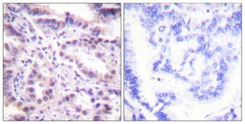 Phospho-ERF (Thr526) Antibody (PA5-38268)