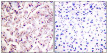 Phospho-ETS1 (Thr38) Antibody (PA5-38269)