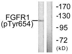 Phospho-FGFR1 (Tyr654) Antibody (PA5-38272)
