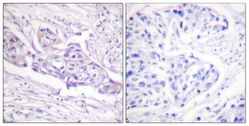 Phospho-FOXO1 (Ser329) Antibody (PA5-38275)