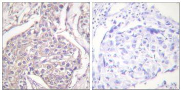 Phospho-HSP20 (Ser16) Antibody (PA5-38278)