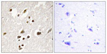 Phospho-IRF3 (Ser385) Antibody (PA5-38285)