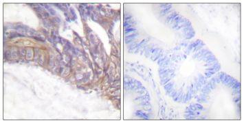 Phospho-LAT (Tyr191) Antibody (PA5-38291)