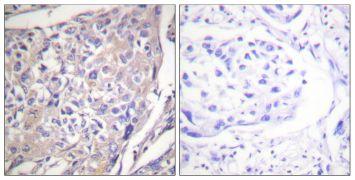 Phospho-p70 S6 Kinase (Ser418) Antibody (PA5-38308)