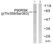 Phospho-RSK1 (Thr359, Ser363) Antibody (PA5-38309)