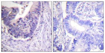 Phospho-PDE4D (Ser53, Ser190) Antibody (PA5-38313)