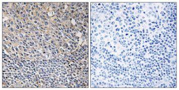 Phospho-PLCG2 (Tyr1217) Antibody (PA5-38319)