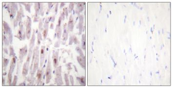 Phospho-TRAP220 (Thr1457) Antibody (PA5-38322)