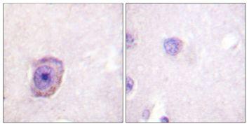 Phospho-Rhodopsin (Ser334) Antibody (PA5-38327)