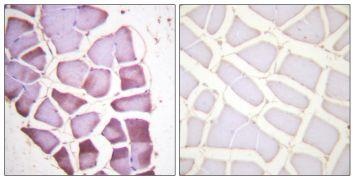 Phospho-S6 (Ser240) Antibody (PA5-38330)