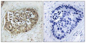 Phospho-SMC1 (Ser966) Antibody (PA5-38331)