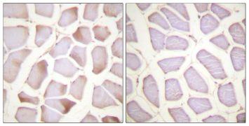 Phospho-Cardiac Troponin I (Ser22, Ser23) Antibody (PA5-38341)