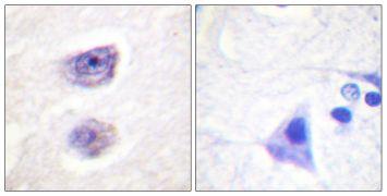 Phospho-Tyrosine Hydroxylase (Ser8) Antibody (PA5-38344)