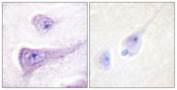 Phospho-WASP (Tyr290) Antibody (PA5-38346)